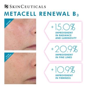metacell-b3-skin rejuenvenation-miami-beach